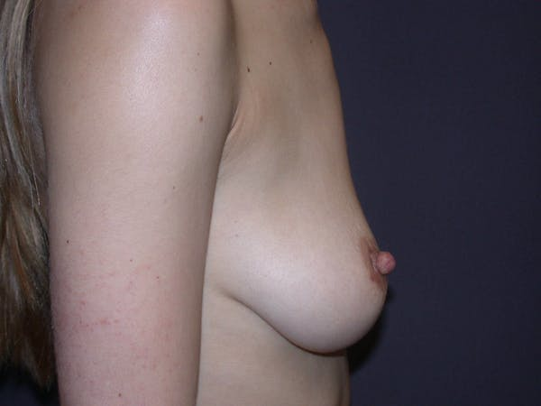 Inverted Nipple Repair Gallery - Patient 4757224 - Image 2