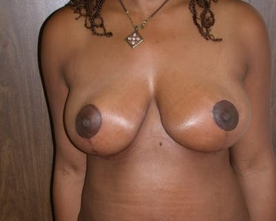 Breast Lift Gallery - Patient 4757226 - Image 2