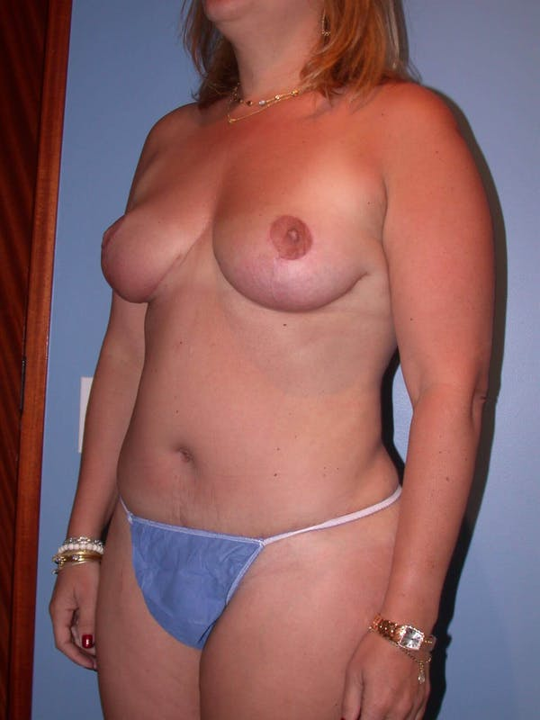 Breast Reduction Gallery - Patient 4757222 - Image 8