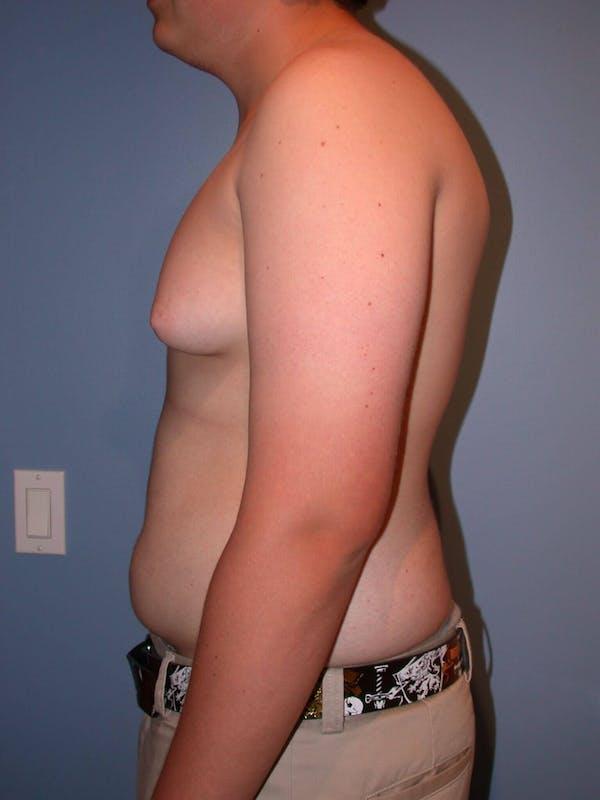 Gynecomastia Gallery - Patient 4757227 - Image 3