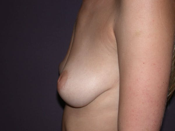 Inverted Nipple Repair Gallery - Patient 4757224 - Image 3