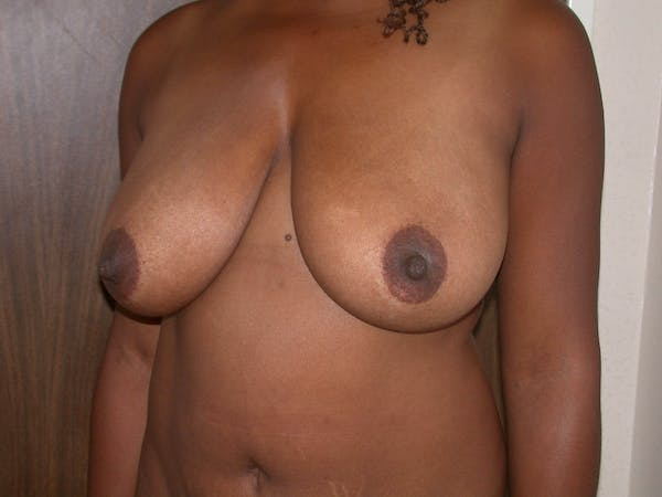Breast Lift Gallery - Patient 4757226 - Image 3