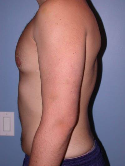Gynecomastia Gallery - Patient 4757227 - Image 4