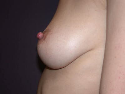Inverted Nipple Repair Gallery - Patient 4757224 - Image 4