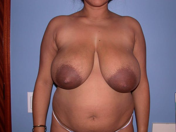 Breast Reduction Gallery - Patient 4757238 - Image 1