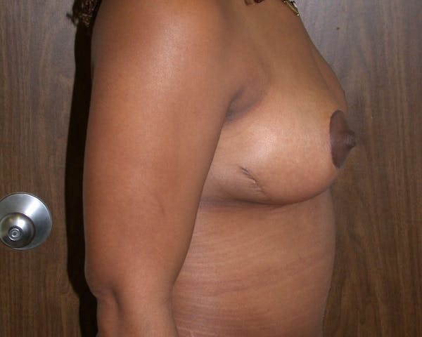 Breast Lift Gallery - Patient 4757226 - Image 6