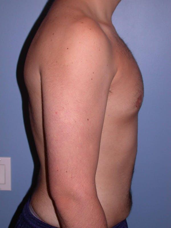 Gynecomastia Gallery - Patient 4757227 - Image 6