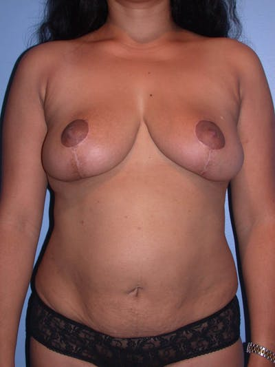 Breast Reduction Gallery - Patient 4757238 - Image 2