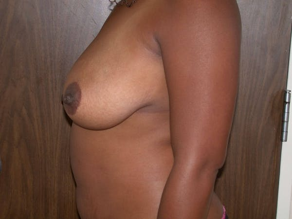 Breast Lift Gallery - Patient 4757226 - Image 7