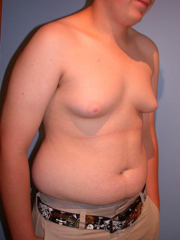 Gynecomastia Gallery - Patient 4757227 - Image 7