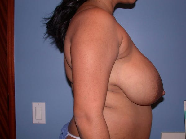 Breast Reduction Gallery - Patient 4757238 - Image 3
