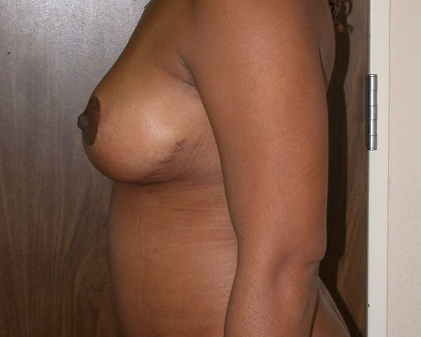 Breast Lift Gallery - Patient 4757226 - Image 8
