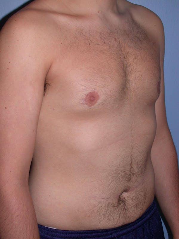 Gynecomastia Gallery - Patient 4757227 - Image 8