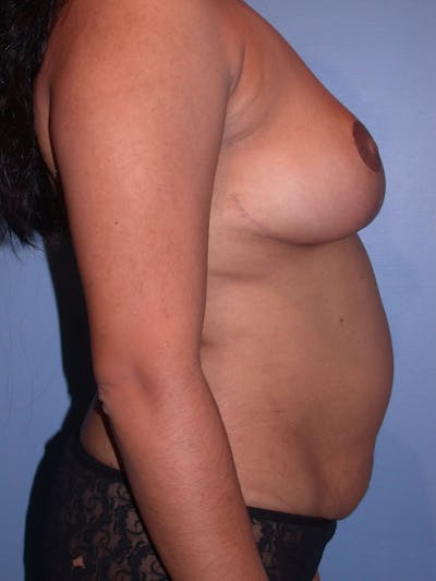 Breast Reduction Gallery - Patient 4757238 - Image 4