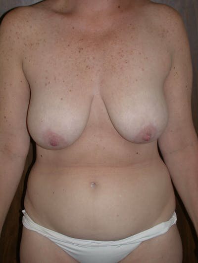Breast Lift Gallery - Patient 4757239 - Image 1