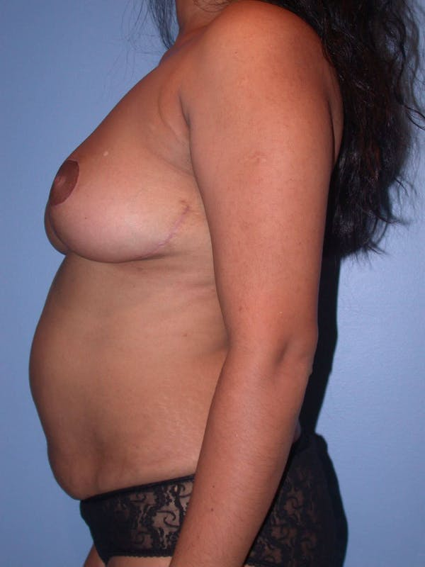 Breast Reduction Gallery - Patient 4757238 - Image 6