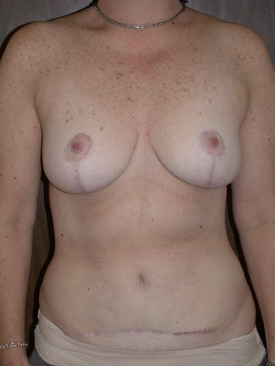 Breast Lift Gallery - Patient 4757239 - Image 2