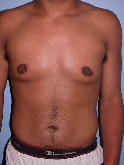 Gynecomastia Gallery - Patient 4757240 - Image 2