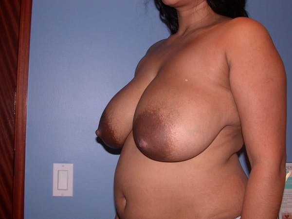 Breast Reduction Gallery - Patient 4757238 - Image 7