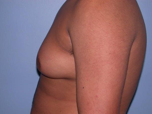 Gynecomastia Gallery - Patient 4757240 - Image 3