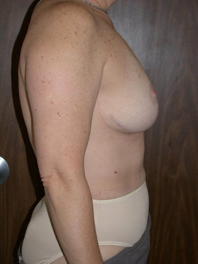 Breast Lift Gallery - Patient 4757239 - Image 4