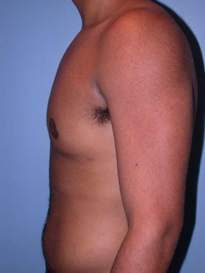 Gynecomastia Gallery - Patient 4757240 - Image 4