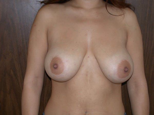 Breast Reduction Gallery - Patient 4757242 - Image 1