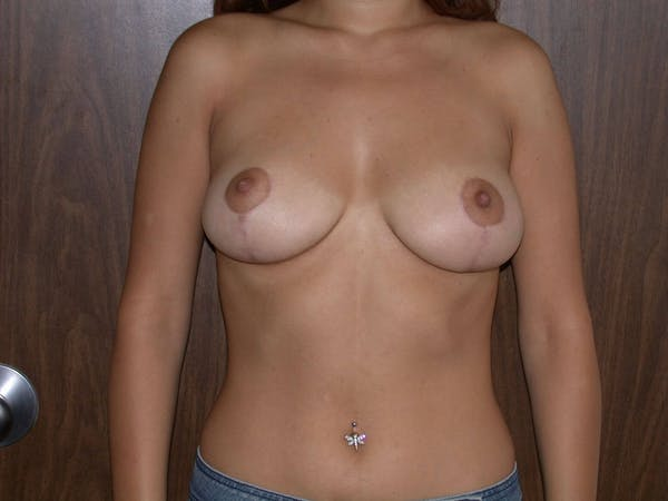 Breast Reduction Gallery - Patient 4757242 - Image 2