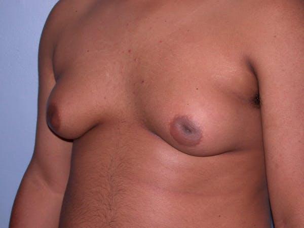 Gynecomastia Gallery - Patient 4757240 - Image 7