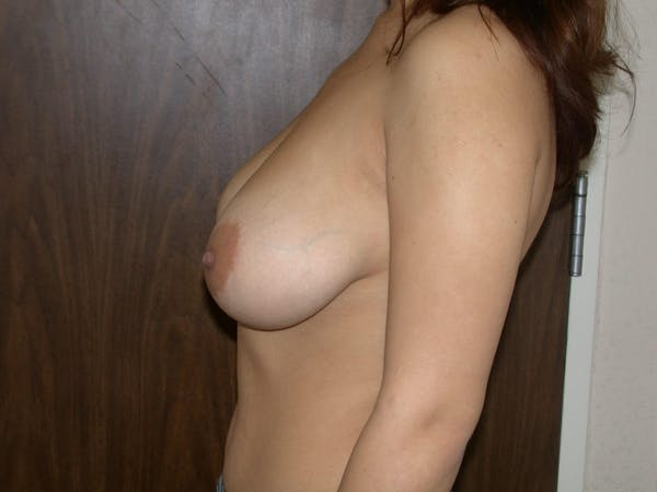 Breast Reduction Gallery - Patient 4757242 - Image 3