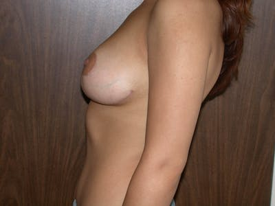Breast Reduction Gallery - Patient 4757242 - Image 4