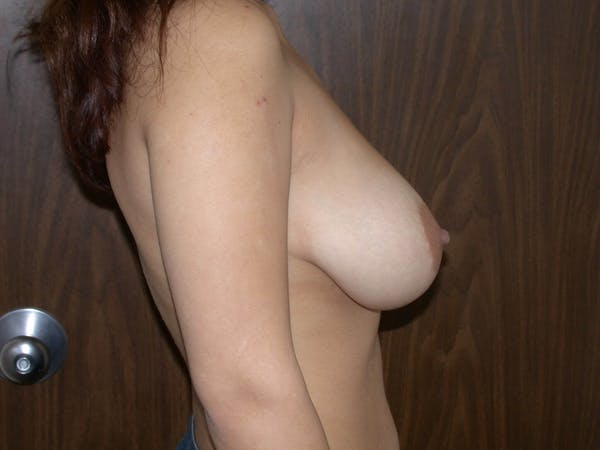 Breast Reduction Gallery - Patient 4757242 - Image 5