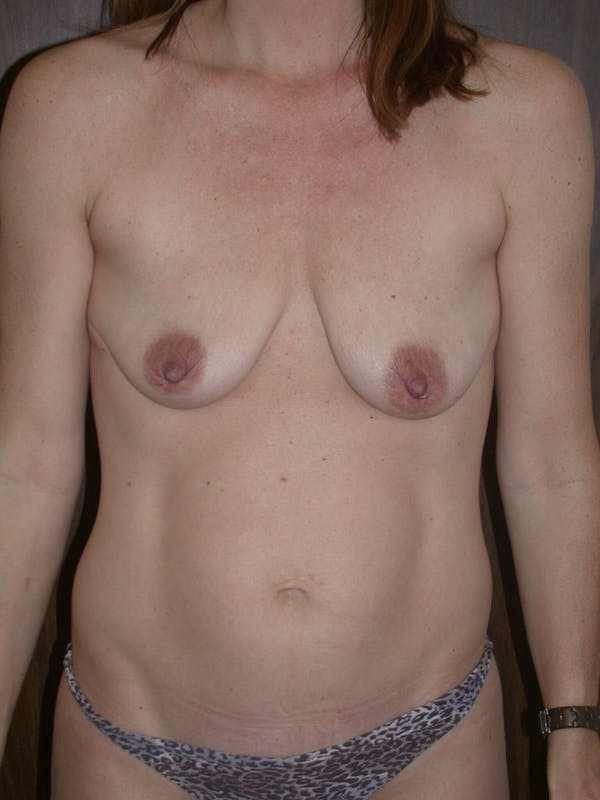 Breast Lift Gallery - Patient 4757246 - Image 1