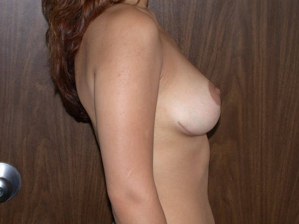 Breast Reduction Gallery - Patient 4757242 - Image 6