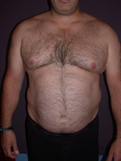 Gynecomastia Gallery - Patient 4757249 - Image 1