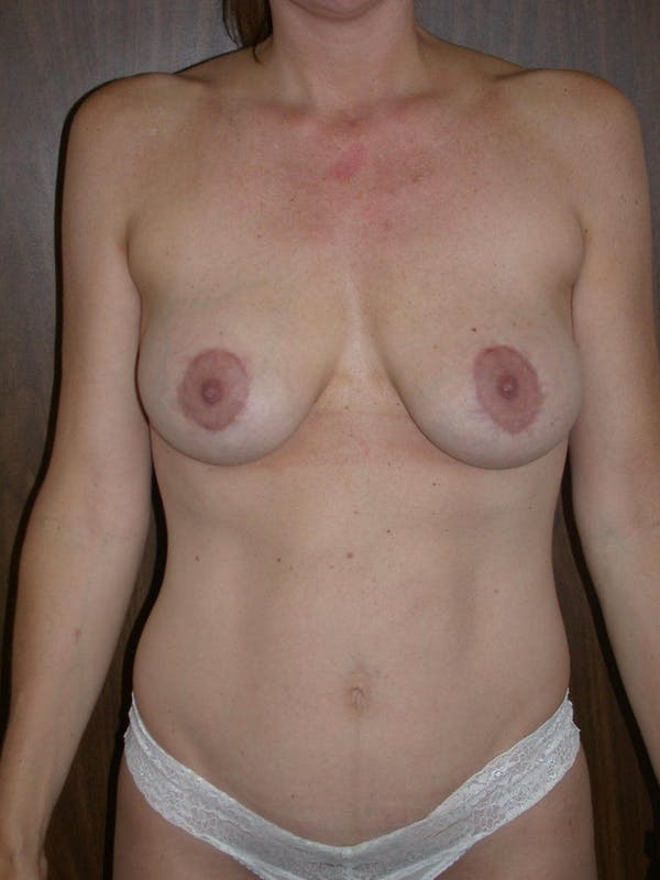 Breast Lift Gallery - Patient 4757246 - Image 2