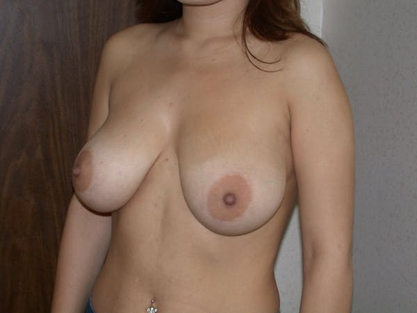 Breast Reduction Gallery - Patient 4757242 - Image 7