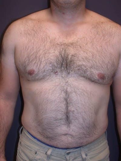 Gynecomastia Gallery - Patient 4757249 - Image 2