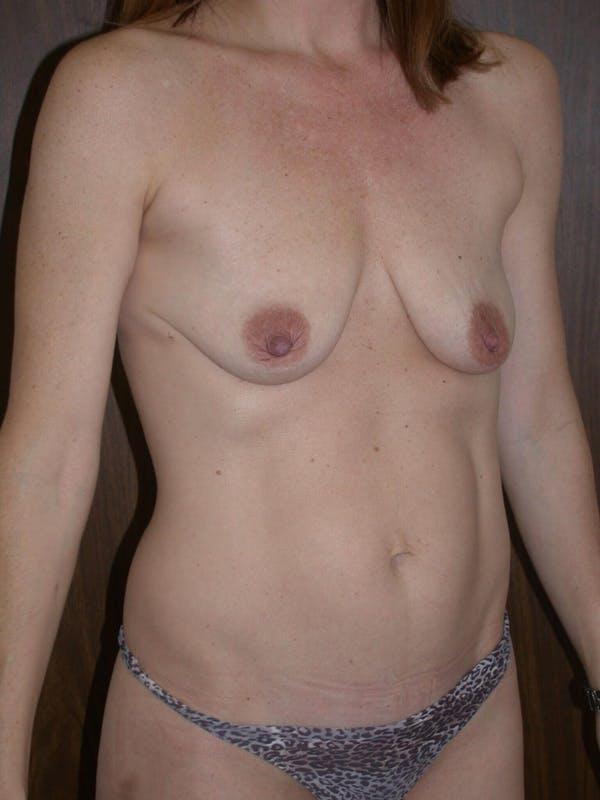 Breast Lift Gallery - Patient 4757246 - Image 3