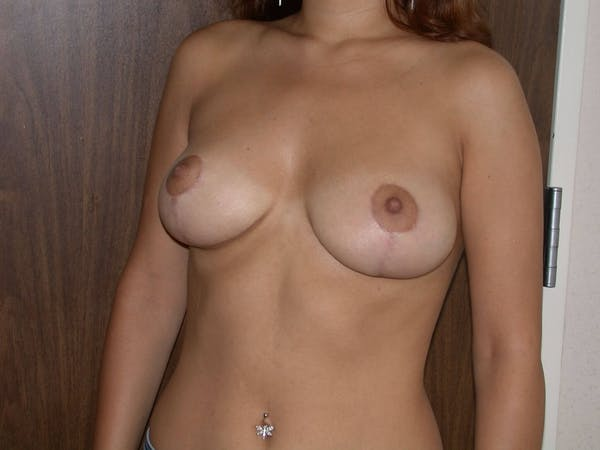 Breast Reduction Gallery - Patient 4757242 - Image 8
