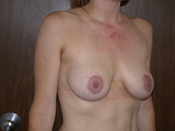 Breast Lift Gallery - Patient 4757246 - Image 4