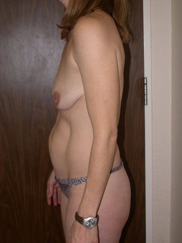 Breast Lift Gallery - Patient 4757246 - Image 5