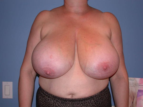 Breast Reduction Gallery - Patient 4757272 - Image 1