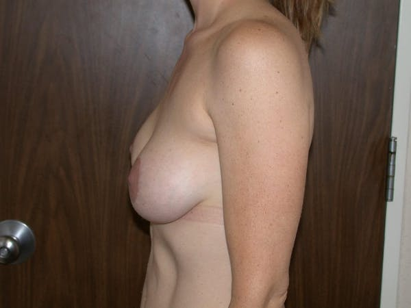 Breast Lift Gallery - Patient 4757246 - Image 6