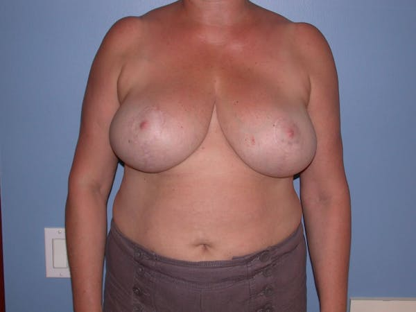 Breast Reduction Gallery - Patient 4757272 - Image 2