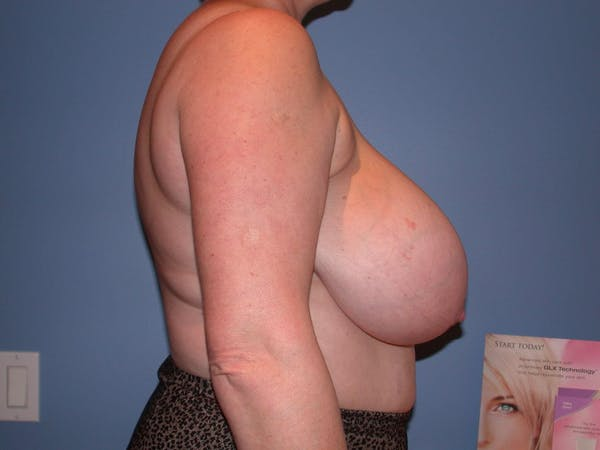 Breast Reduction Gallery - Patient 4757272 - Image 3