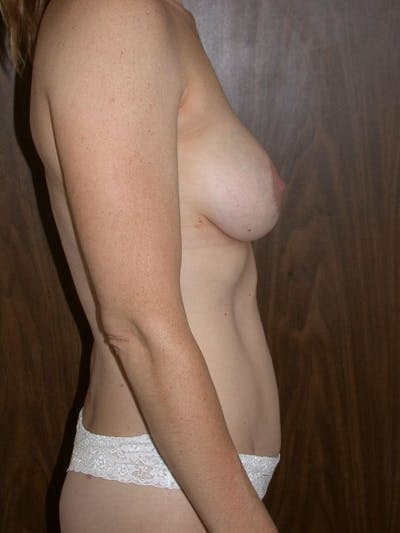 Breast Lift Gallery - Patient 4757246 - Image 8