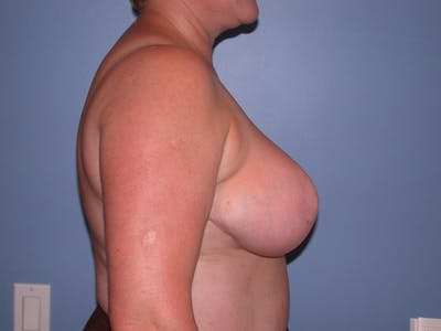 Breast Reduction Gallery - Patient 4757272 - Image 4