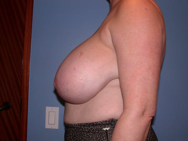 Breast Reduction Gallery - Patient 4757272 - Image 5