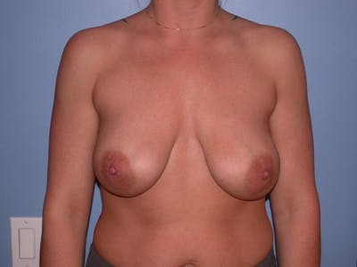 Breast Lift Gallery - Patient 4757274 - Image 1